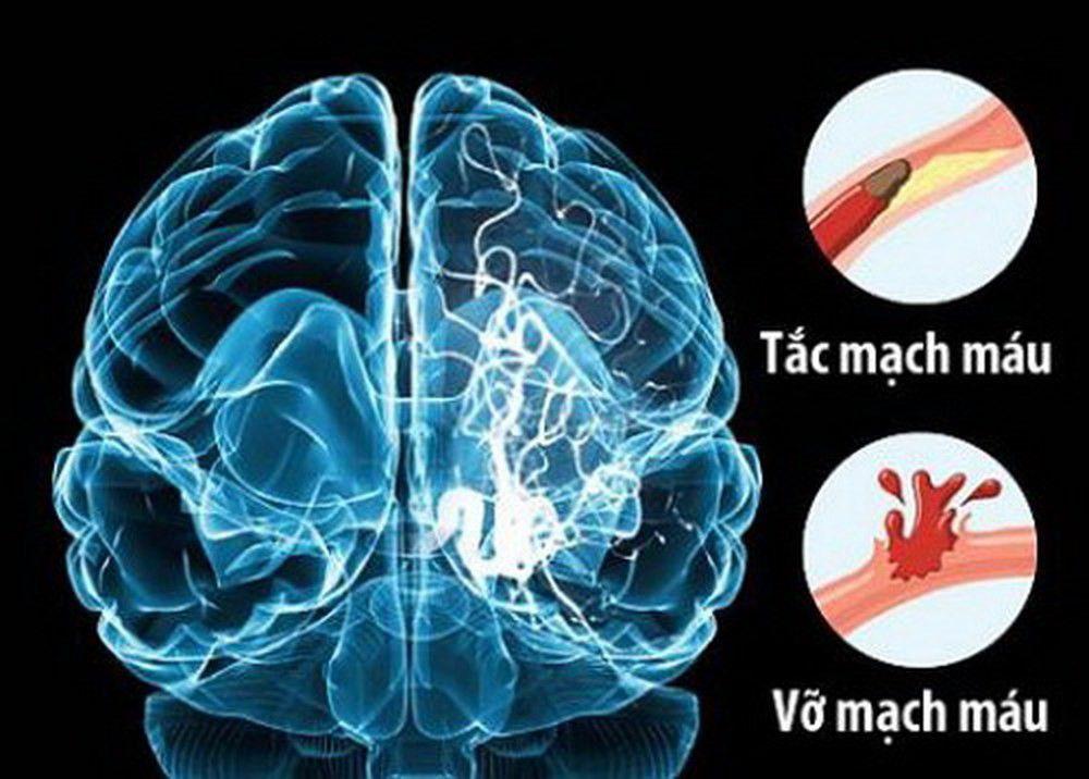 Phòng tránh tai biến mạch máu não